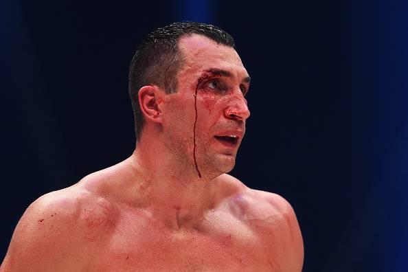 Klitschko vs Fury